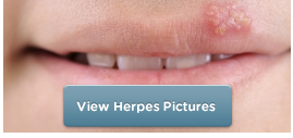 view herpes images