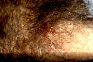 Photo of genital herpes