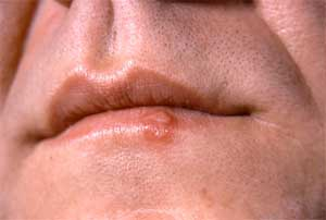 Picture of a man with oral herpes outbreak