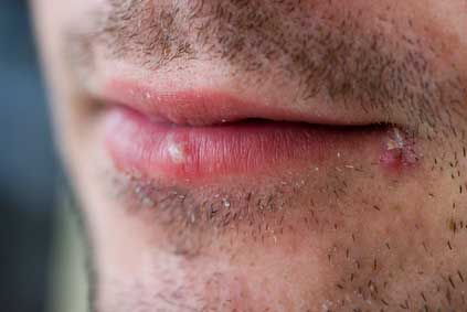 Photo of Man with cold sores