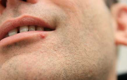 Picture of Man with oral herpes
