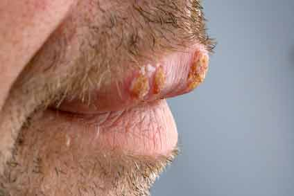 Picture of a man with oral herpes